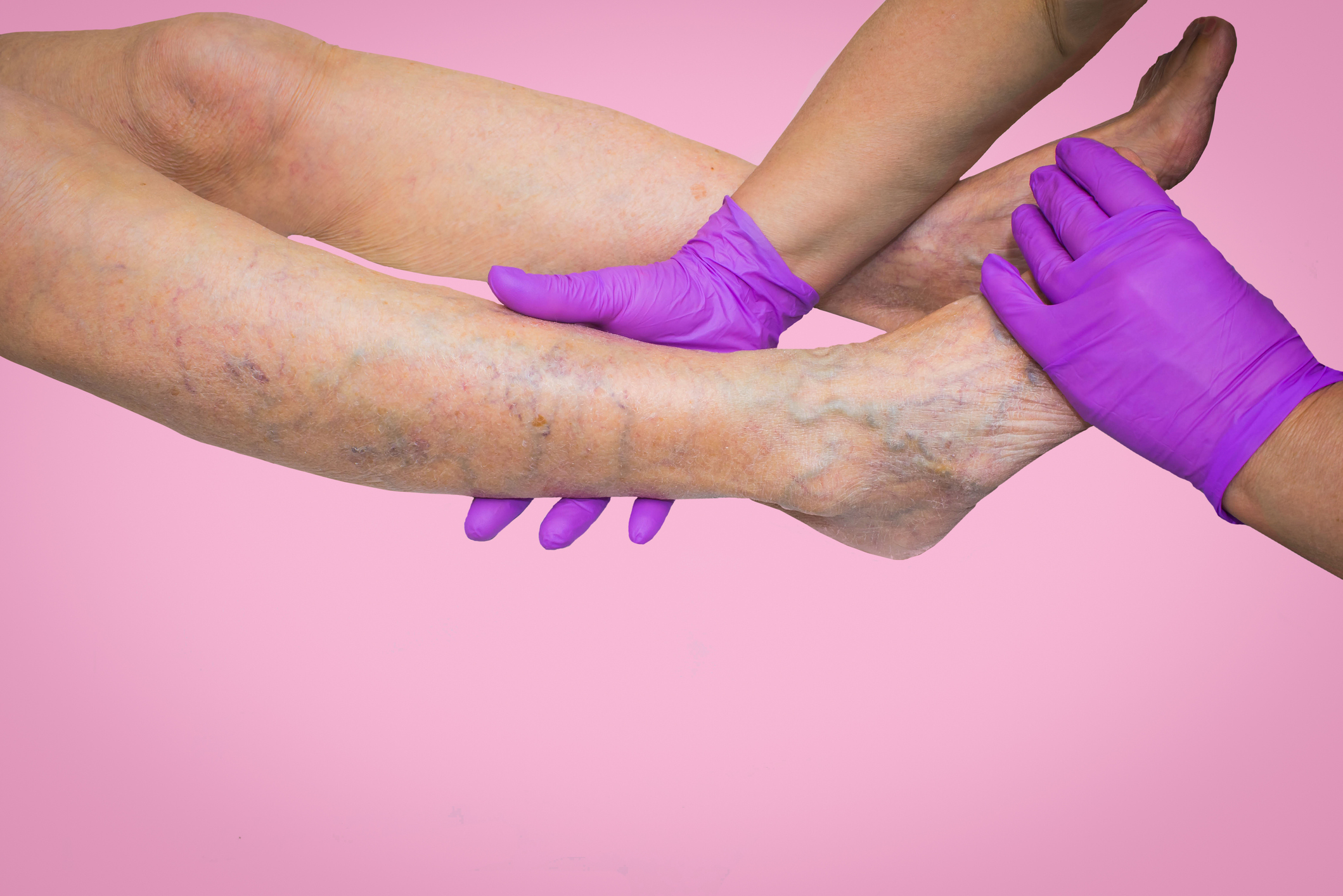 Venous insufficiency resulting in varicose, spider and reticular veins