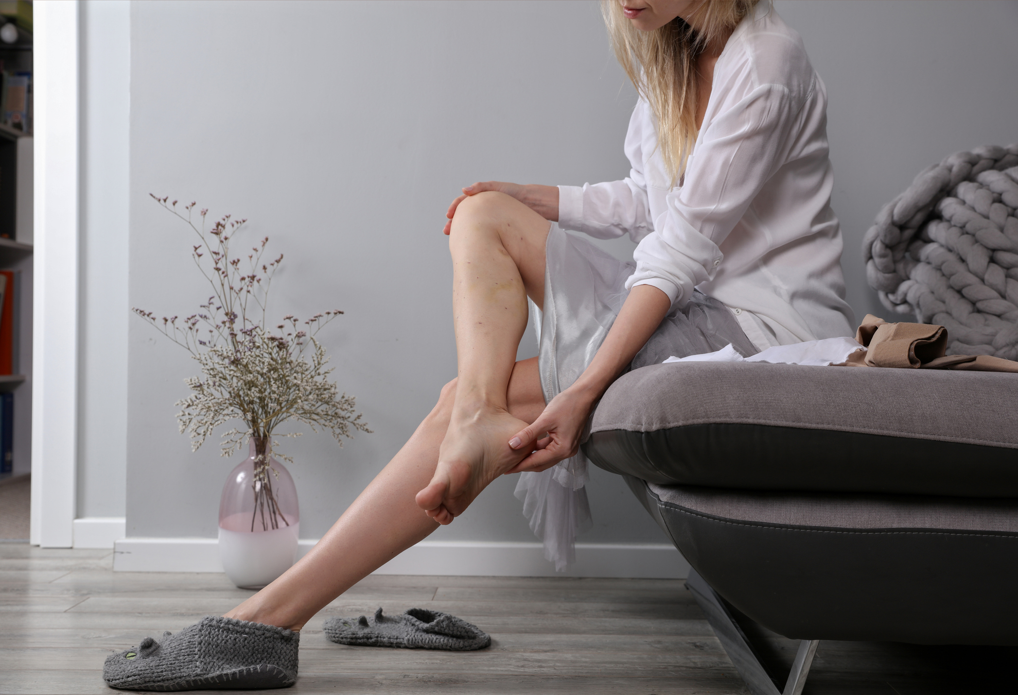 Unsightly and painful spider and varicose veins
